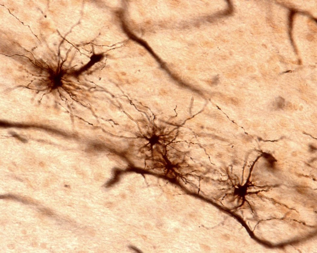 New Enzyme May Help Treat ALS By Modulating Inflammation