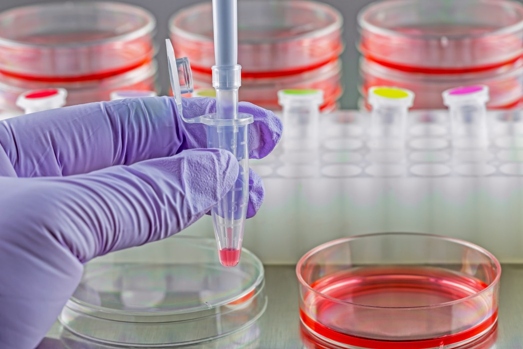 Q Therapeutics Announces FDA Clearance of Its Stem Cell Therapy Q-Cells for Human Trials in ALS