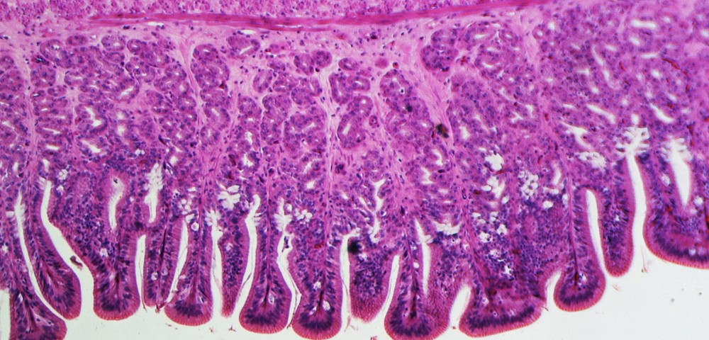 Specific Protein, P63, Seen to Promote ALS by Regulating Muscle Atrophy Effector Gene