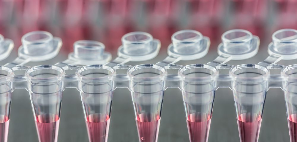 FDA Approves Test of Combined Stem Cell and Gene Therapy for ALS