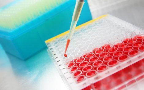 Researchers Develop New Molecule, 123C4, with Possibility to Treat ALS