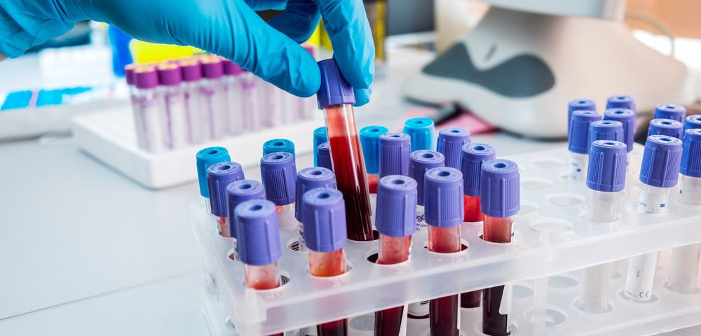 Antibodies Circulating in Blood May Serve as Biomarker for ALS, Disease Severity