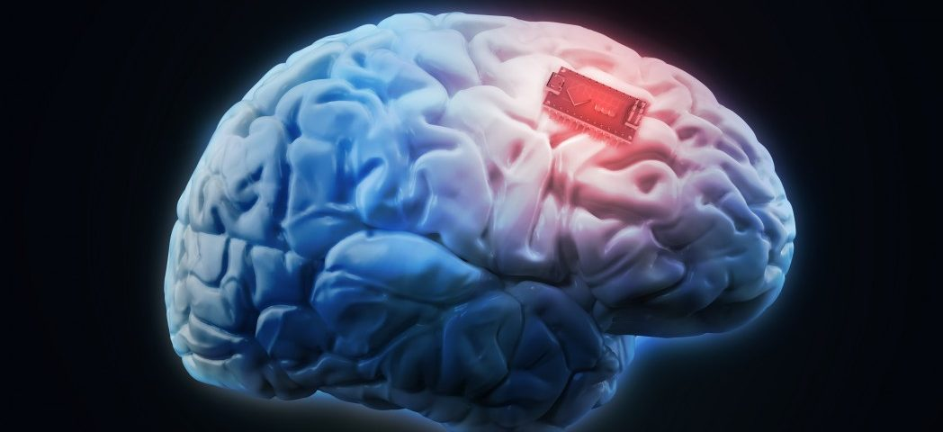 Brain Implant Helping 'Locked-In' ALS Patient to Communicate, Even Outdoors