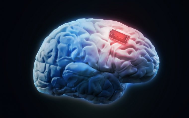 brain implant and ALS