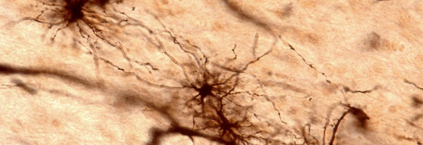 Genetically Engineered Mice Will Shed Light on Astrocyte Brain Cells' Role in ALS