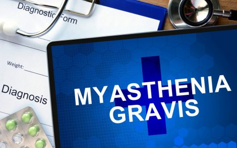 Co-occurrence of ALS and Myasthenia Gravis Prompts Search for Shared Factors
