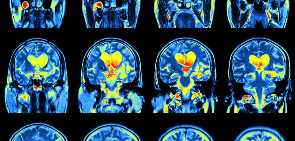 MRI Could Serve as Useful Biomarker to Assess ALS Progression, Study Suggests
