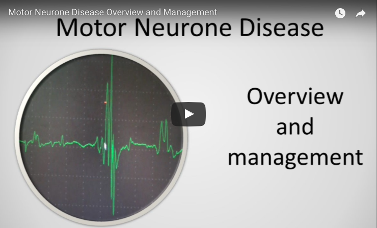 An overview of motor neuron disease als news today for What causes motor neuron disease mnd