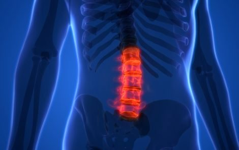 Spine Inflammation Might Explain Why Motor Neurons Die in ALS, Researchers Suggest